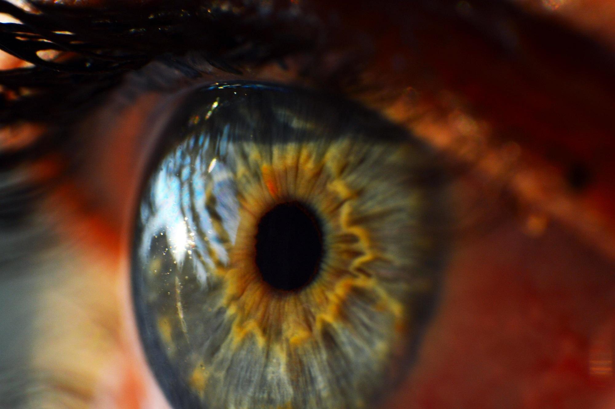 Nova técnica permite detetar sinais de glaucoma precocemente