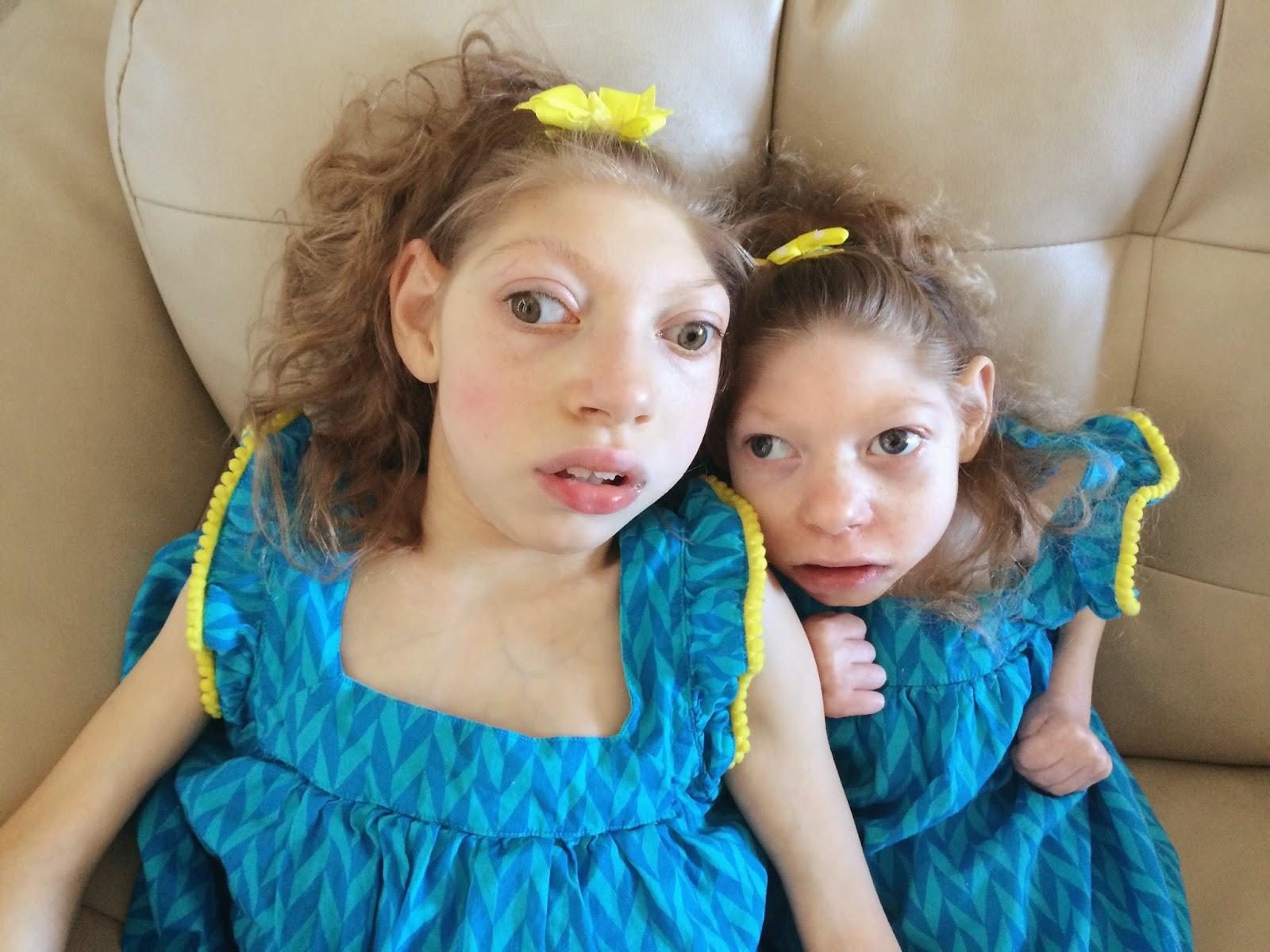 A microcefalia faz parte da vida deles há 14 anos
