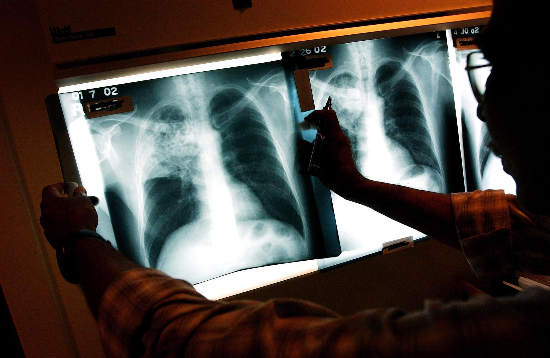 Luanda deteta 500 novos casos de tuberculose por mês