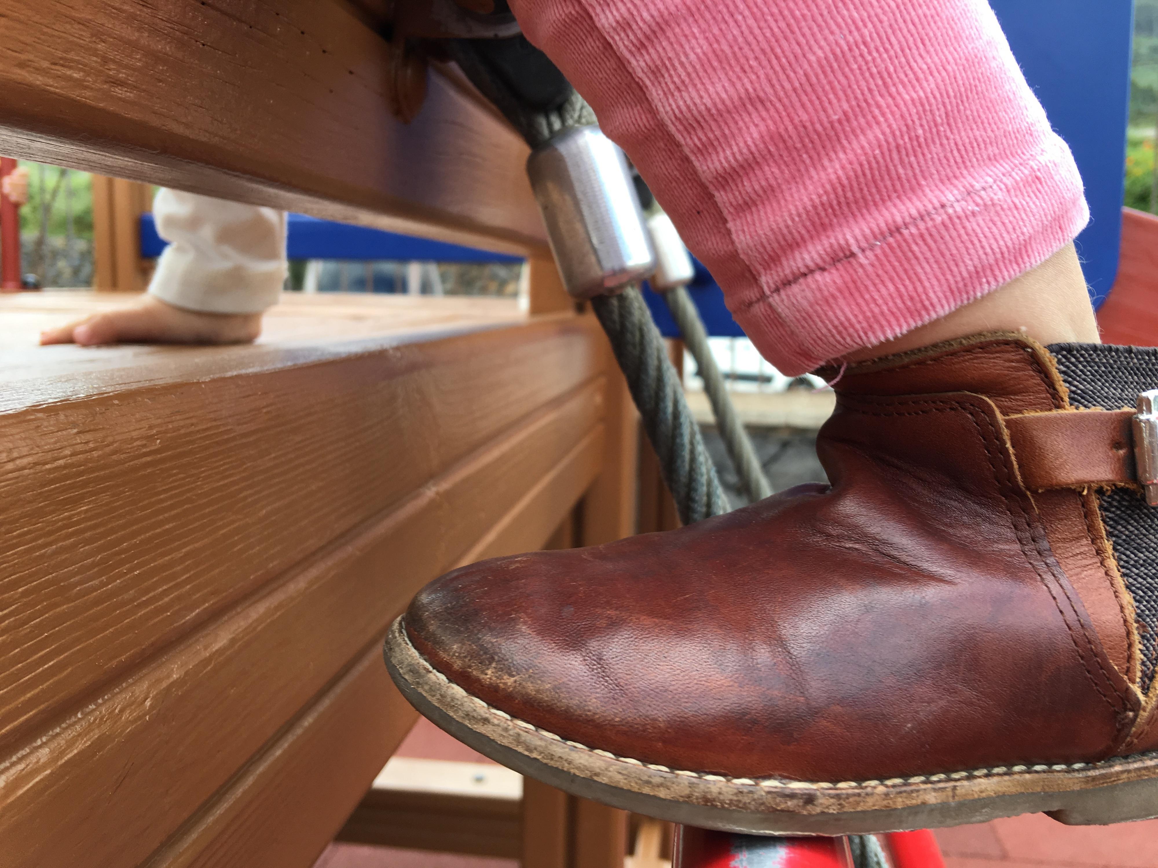 Cirurgia do pé boto para corrigir marcha em crianças pode não ser a melhor opção