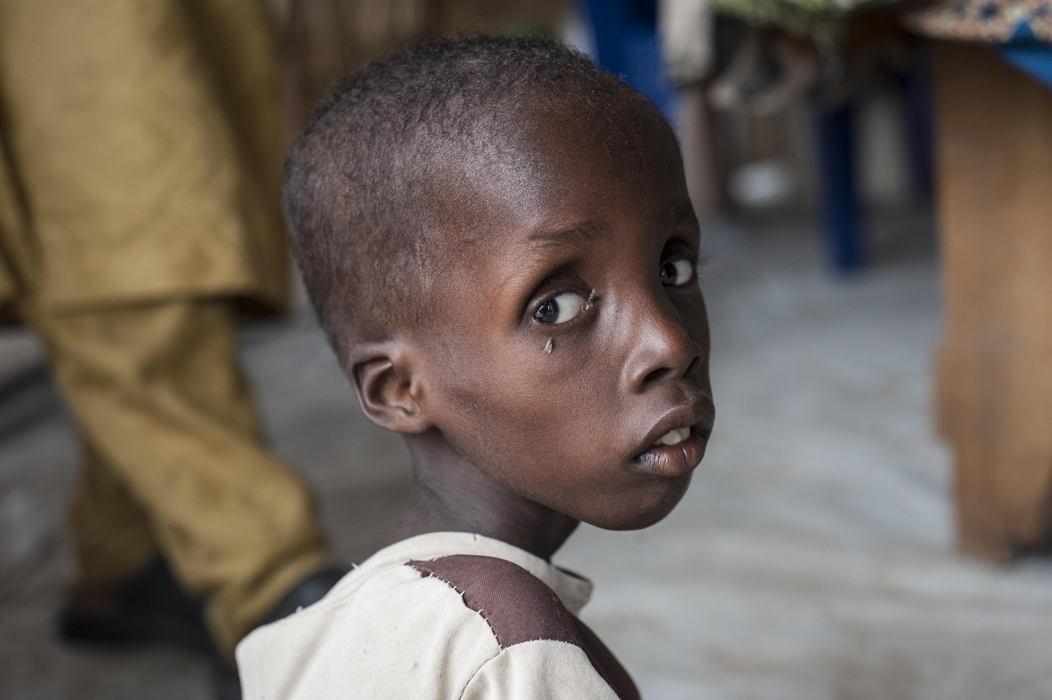Um quarto das crianças que morrem em Moçambique estão desnutridas