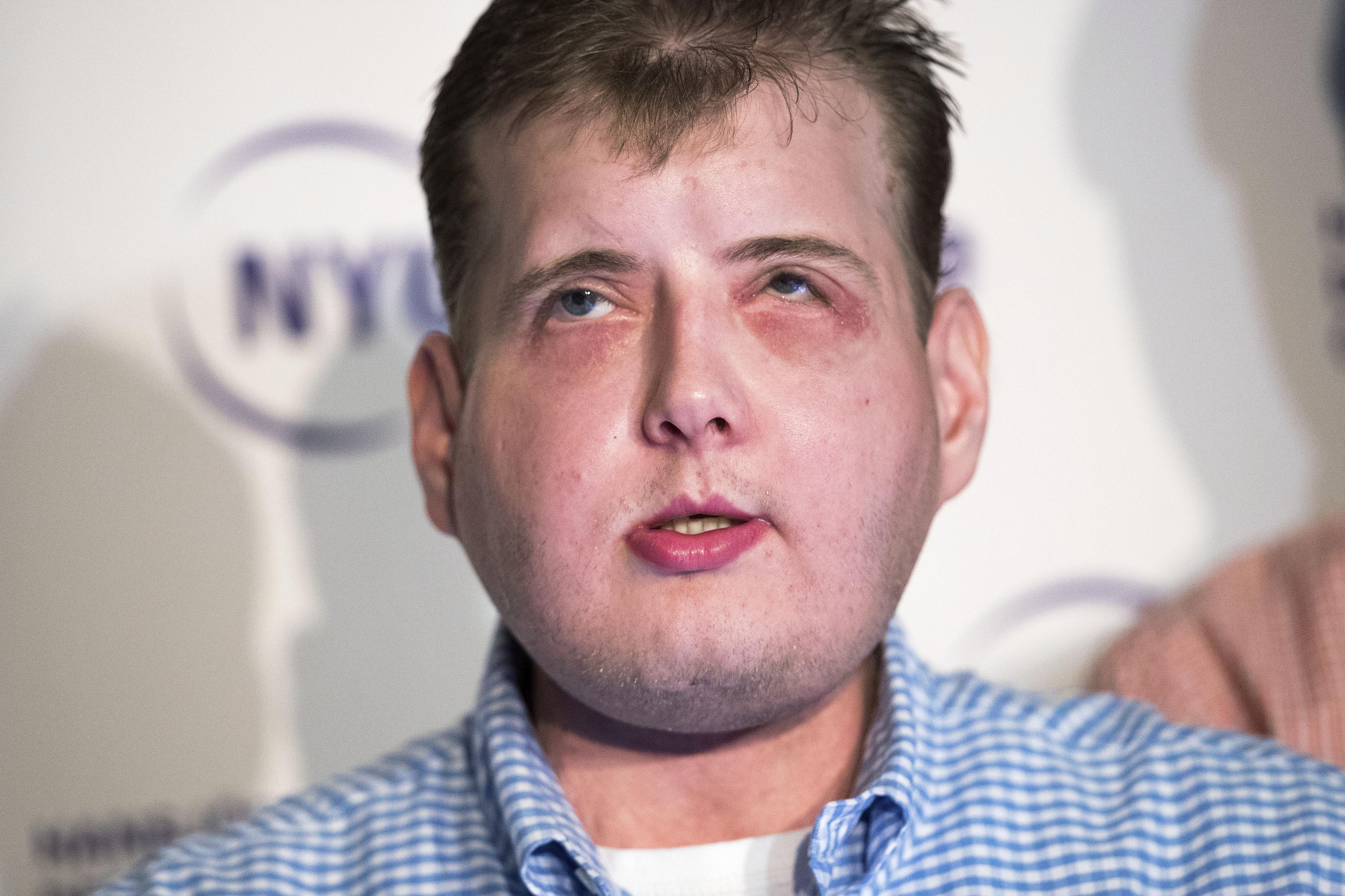 """Homem recupera """"vida normal"""" um ano depois de um transplante integral de face"""