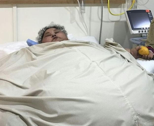 Irmã da mulher mais gorda do mundo acusa médicos de estarem a mentir