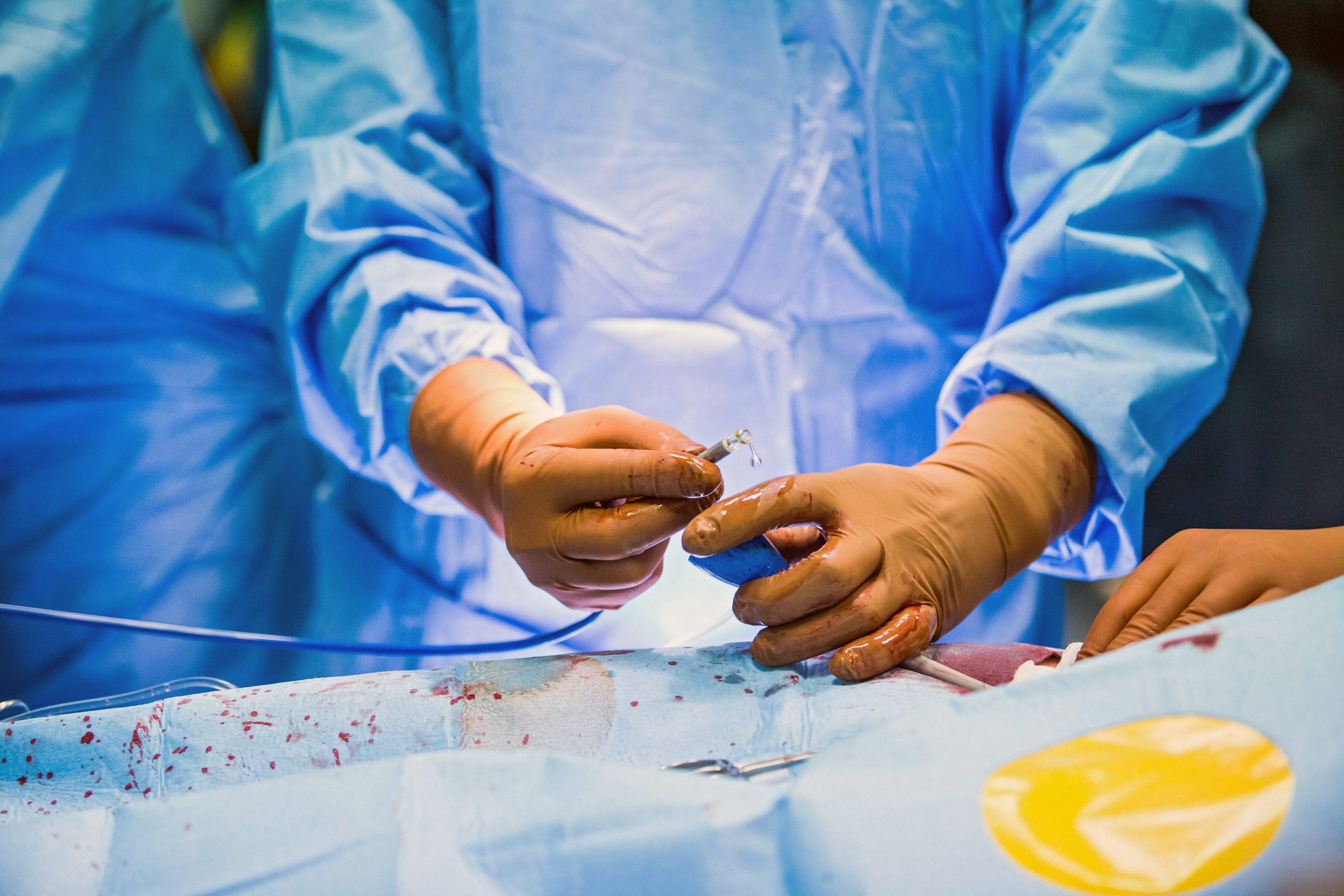 Hospitais usam dispositivos médicos e só depois os põem nas contas