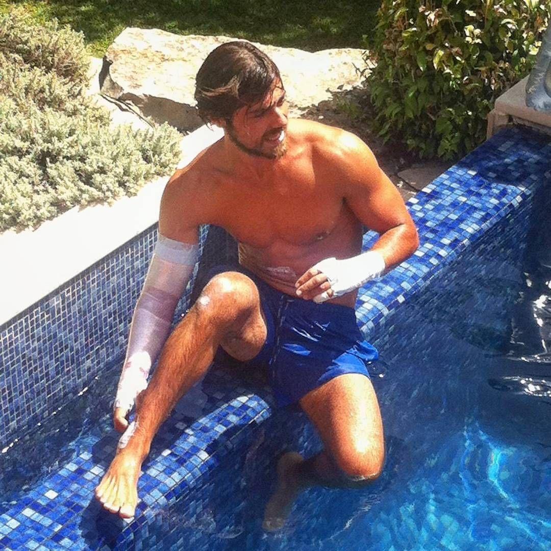 Ainda em recuperação, Lourenço Ortigão mergulha na piscina