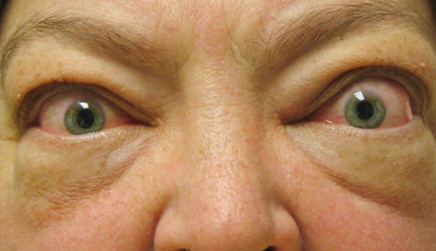 Doença de Graves: doença tiroideia autoimune
