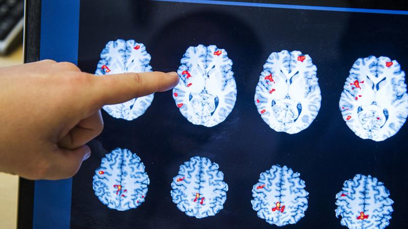 Cientistas descobrem nova via terapêutica para tratar o Alzheimer