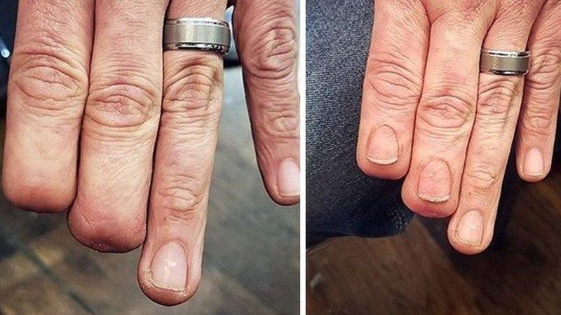 Eles esconderam as cicatrizes com tatuagens artísticas