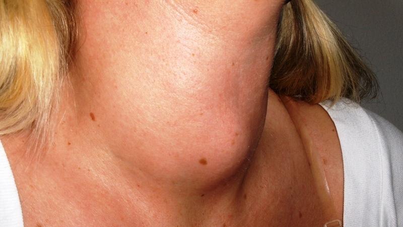 O cancro da tiroide pode surgir sem nenhum sintoma