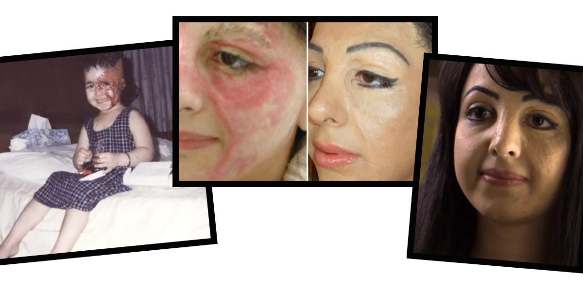 O procedimento de reconstrução das auréolas mamárias que também ajuda a camuflar queimaduras e cicatrizes