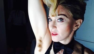 Pelos públicos: 13 celebridades que escolhem orgulhosamente não se depilar