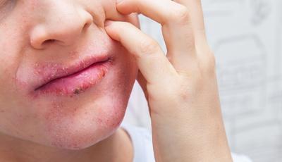 Plano de ação para combater a dermatite atópica na infância