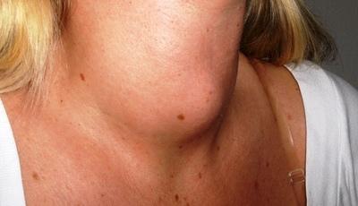 Cancro da tiroide pode não ter sintomas nenhuns. As explicações de uma médica