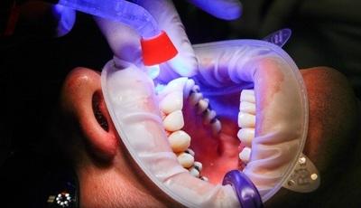 Tratar cáries e restaurar dentes pode ter os dias contados