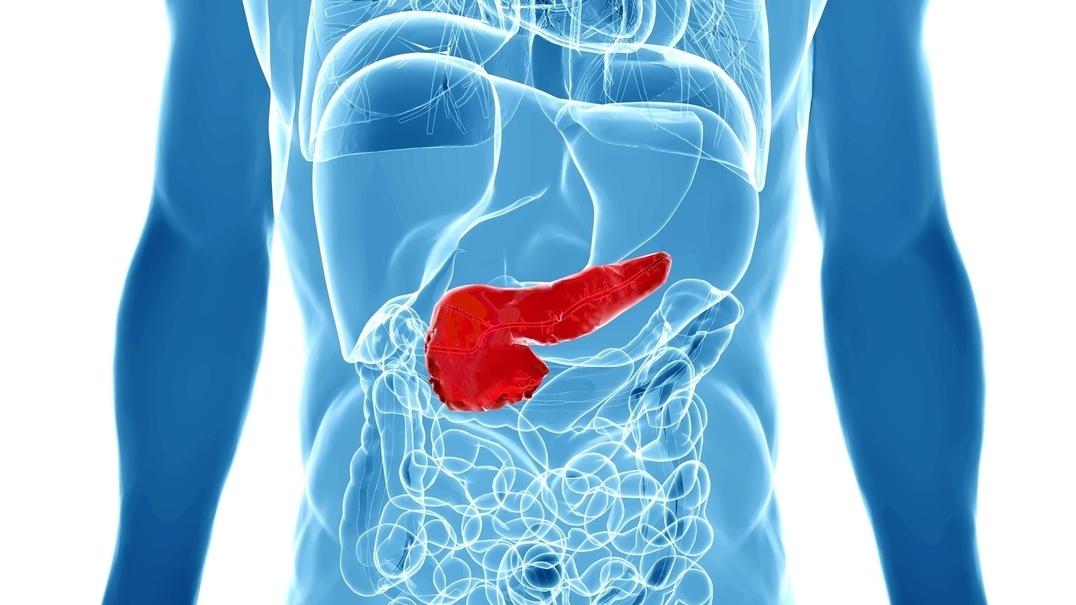 Cancro do pâncreas: tempos de espera e desvalorização dos sintomas põem em causa milhares de vidas todos os anos
