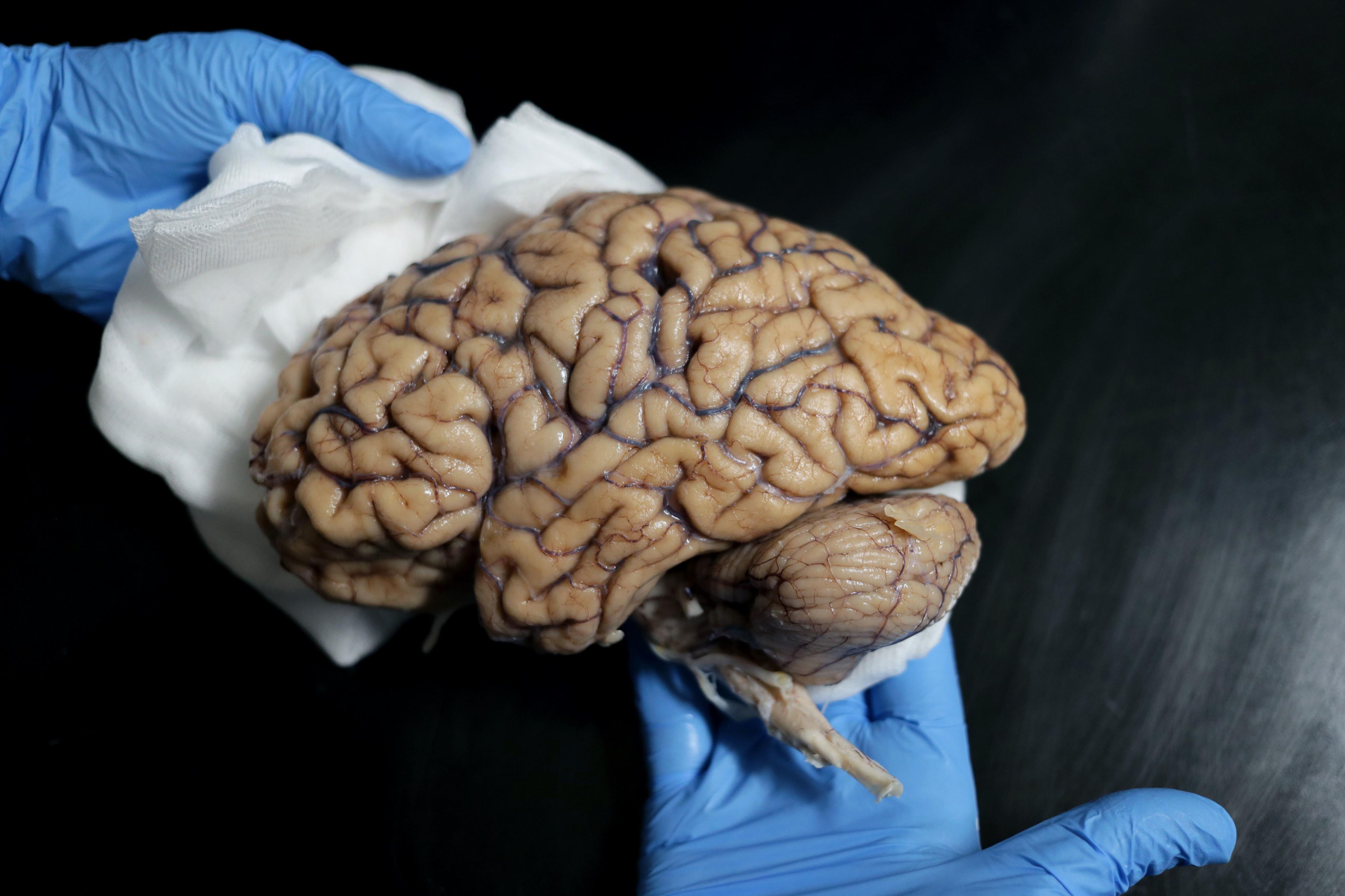 Há um banco de cérebros em Portugal quer quer receber doações de exemplares saudáveis a partir deste ano