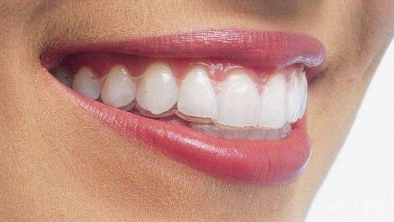 Estética dentária: tratamento ortodôntico com alinhadores transparentes