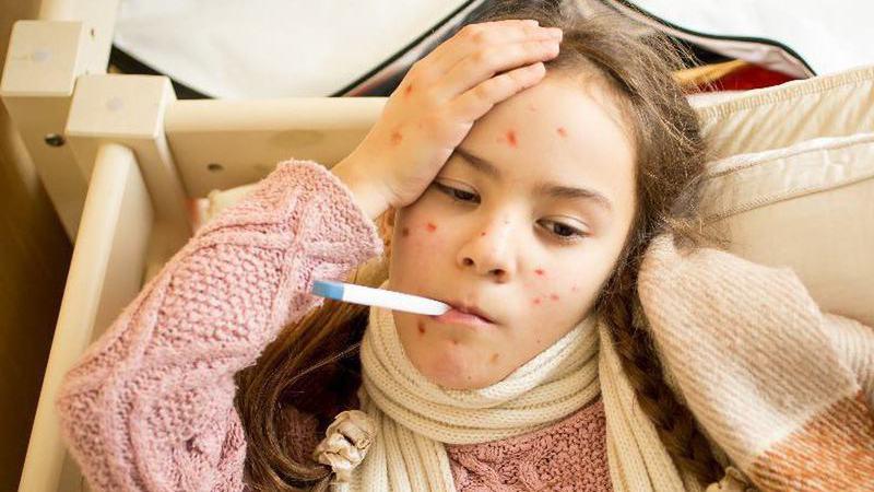 Sarampo: UNICEF estima que mortes diminuíram em 85% no mundo devido à vacinação