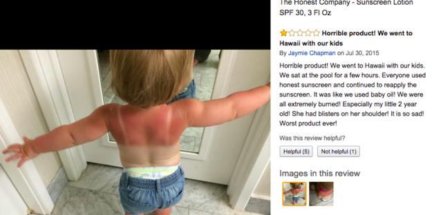 Protetor solar vendido pela empresa de Jessica Alba provoca queimaduras solares
