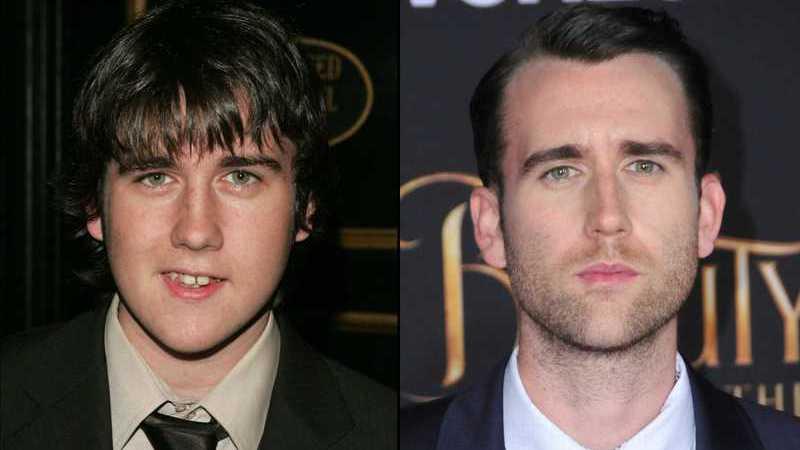 Antes e depois: As maiores transformações das celebridades