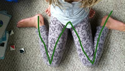 """Postura nas crianças: sentar em """"W"""" é um risco"""