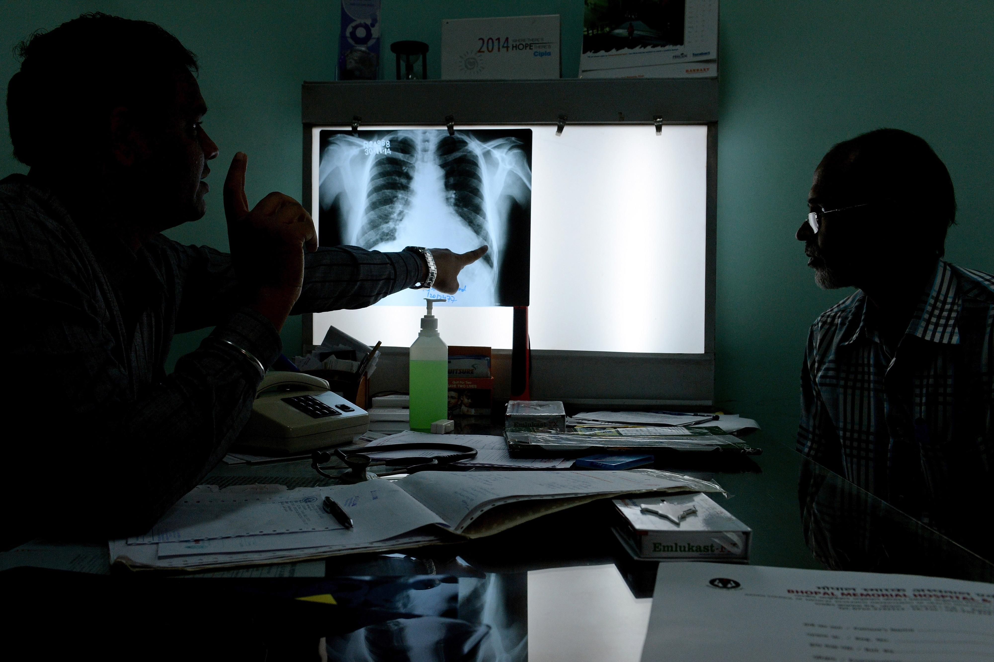 Penafiel e Marco de Canaveses com mais casos de tuberculose que média nacional