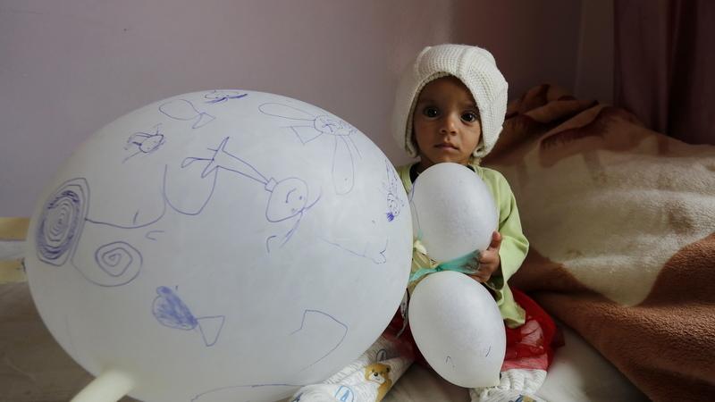 ONU afirma que 20 milhões de pessoas no Iémen estão no nível mais severo de desnutrição