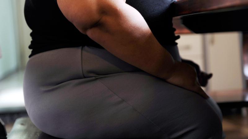 A mulher mais gorda do mundo vai ser operada na Índia