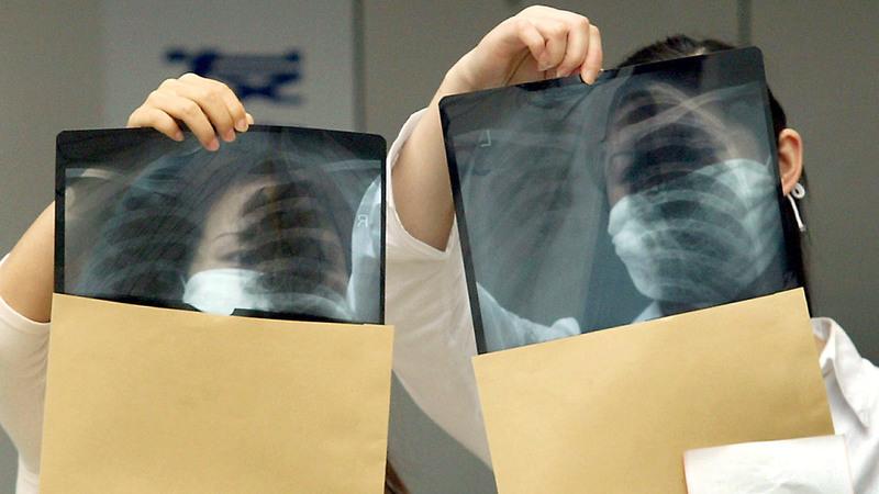 Computadores já detetam cancro com mais precisão que médicos radiologistas