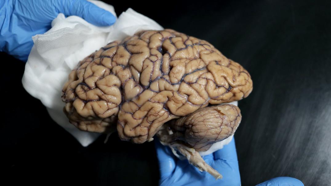 Há um banco de cérebros em Portugal quer quer receber doações de exemplares