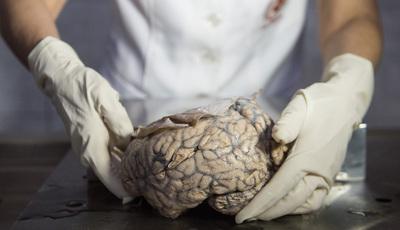 É isto que acontece ao cérebro no momento exato da morte