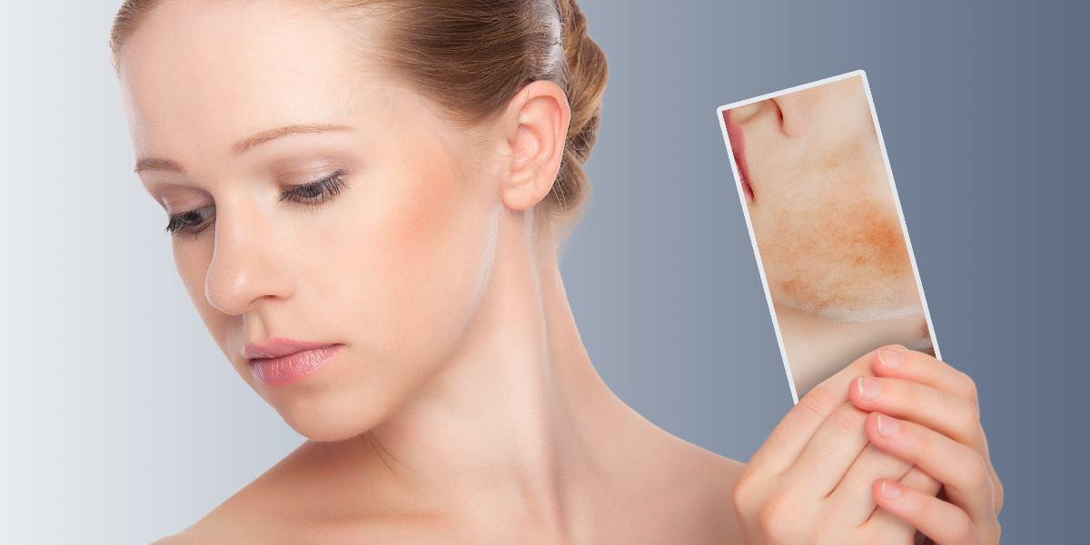 Dermatite atópica sob controlo