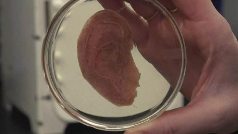 Cientistas usam maçã e criam tecido humano para transplante